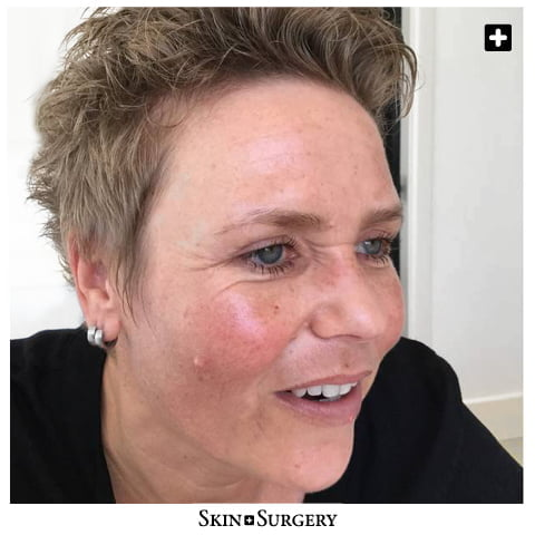 Skin + Surgery Clinics | Mole removal