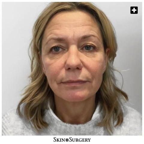 Skin + Surgery Clinics | Ooglidcorrectie