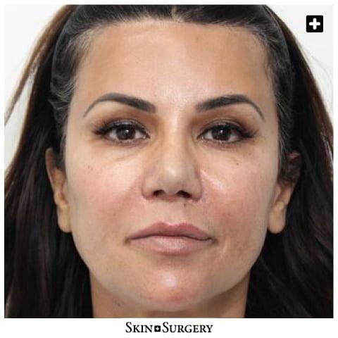 Skin + Surgery Clinics | PDO-draden
