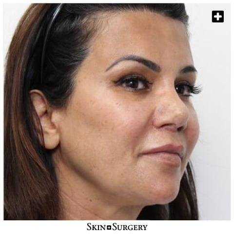 Skin + Surgery Clinics | PDO-threads