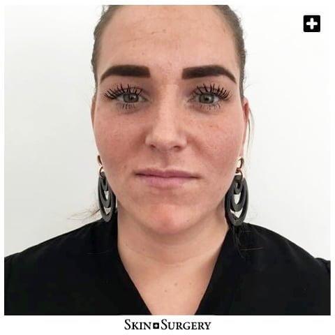 Skin + Surgery Clinics | Filler voor de lippen