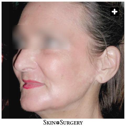 Skin + Surgery Clinics | Chemische Peeling