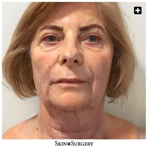 Skin + Surgery Clinics | Facelift