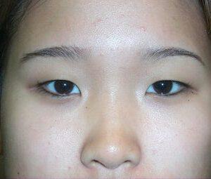 aziatische ooglidcorrectie double eyelid
