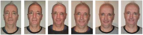 ooglidcorrectie-verloop-herstel