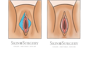 Labiacorrectie-Transparant